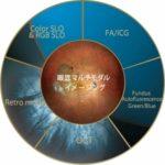 最新型検査機器:Mirante(共焦点走査型ダイオードレーザ検眼鏡)を導入しました。